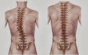 Gangguan dan Penyakit Pada Sistem Gerak
