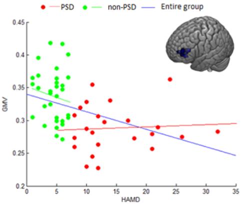図:脳卒中後うつと灰白質の体積