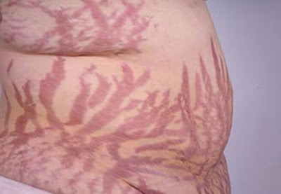 Home solution for stretch marks