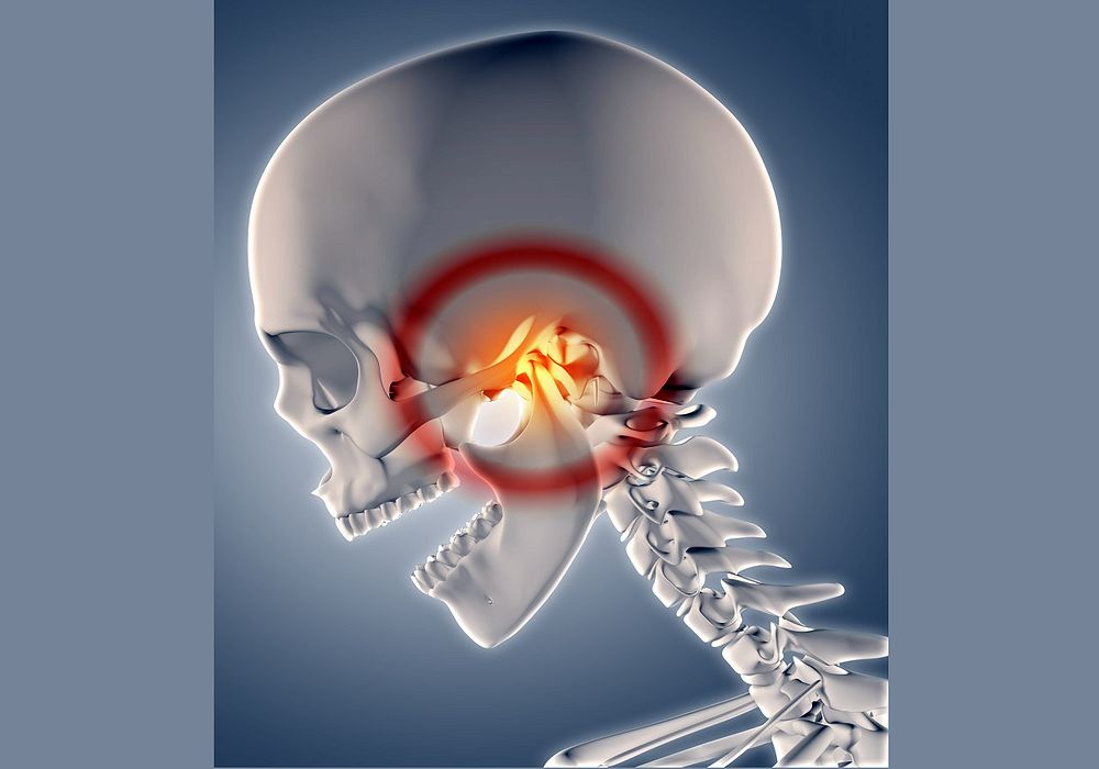 TMJ-Jaw Pain