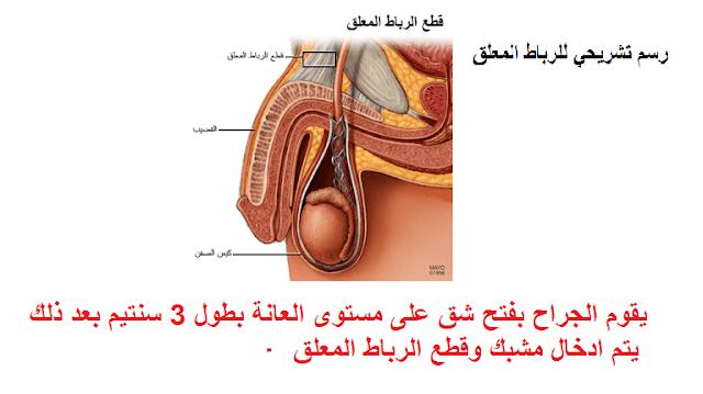 جراحة تكبيرالقضيب قطع الرباط المعلق