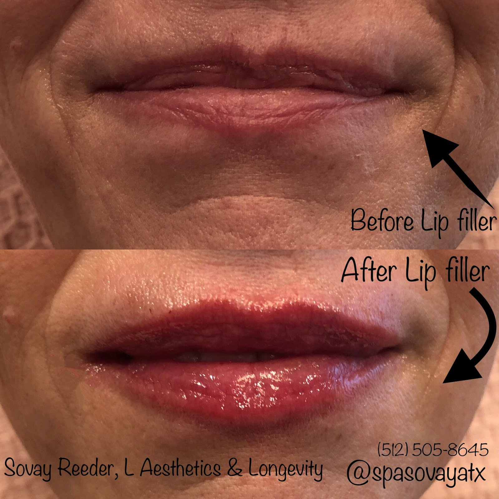 Professional Primp Lip Natural Filler In Austin Medical Injector Sovay Reeder