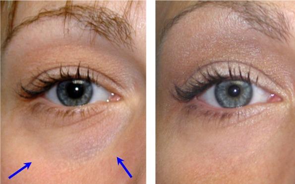 Under Eye Hollow Treatment