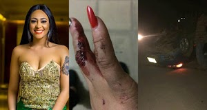 Actress Rosaline Meurer Survives Fatal Accident, Says God Will Flog Her Enemies