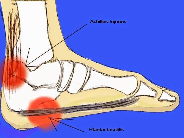 Center for Ankle and Foot Care Blogspot: The most common foot ...