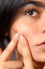 Jerawat pernah hinggap di kulit mayoritas remaja dan sejumlah besar orang dewasa Tekhnik Menghilangkan Jerawat