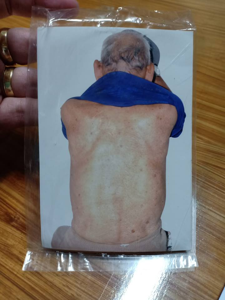 Photographer angers doctor for accepting old man's x-ray request