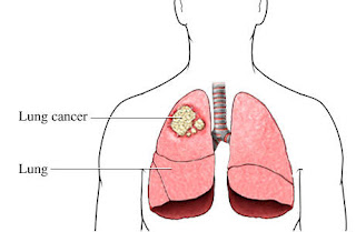 Causes, Symptoms and Treatment For Lung Cancer