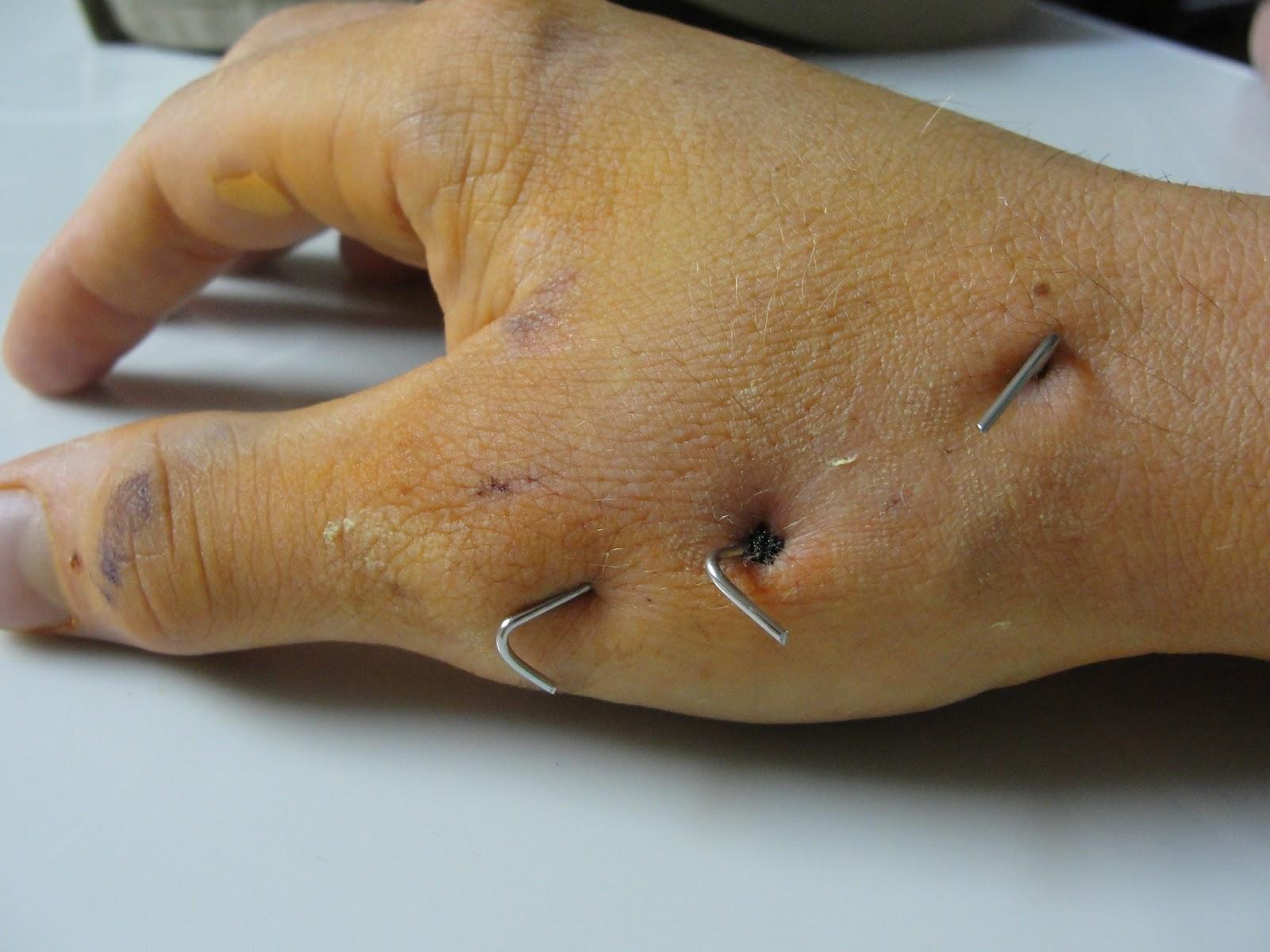 Joint Surgery Cast Basal