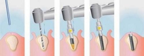 dịch vụ Trồng Cấy Ghép Implant -8