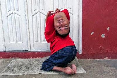 رجل برازيلي ولد برأس مقلوبة