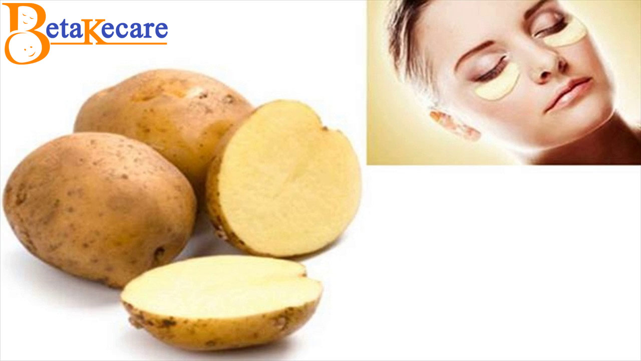 Potato  for Dark Circles