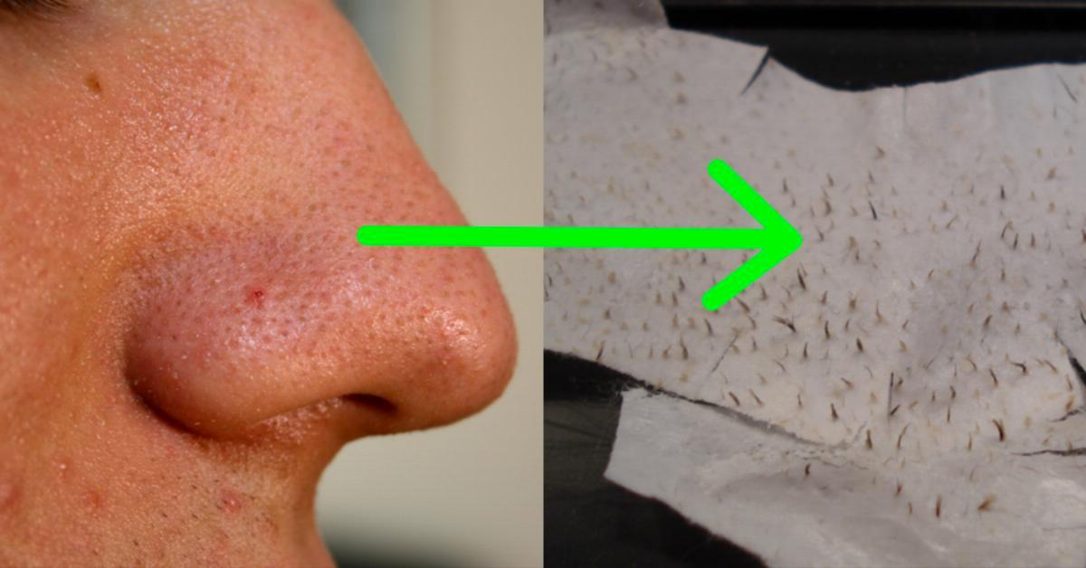 Как убрать черные пятна с кожи фото