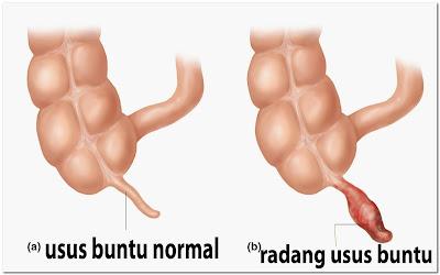 cara mengobati usus buntu tanpa operasi