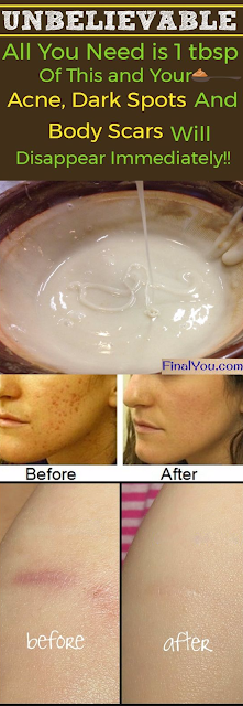 UNBELIEVABLE!! HOMEMADE FACE MASK TO GET RID OF SPOTS, ACNE SCARS, AND WRINKLES