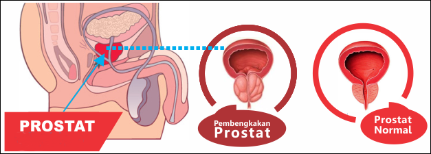 Hasil gambar untuk pembesaran prostat