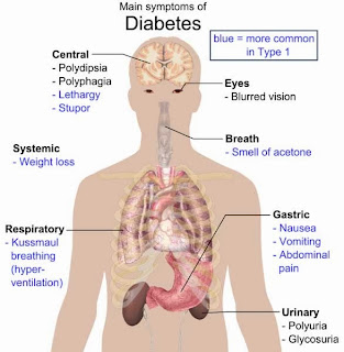 فيروسات تتسبب في مرض السكري و أنتجنا لقاح للوقاية منه