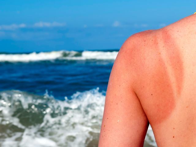 Cum ne protejam vara de cancerul de piele