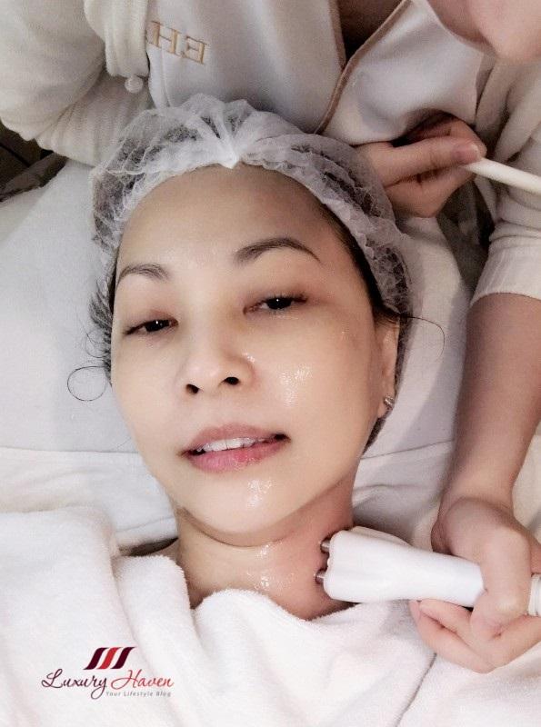 venus viva diamond polar neck double chin removal