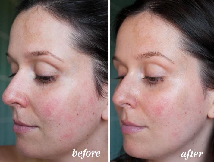 Beauty: Delbôve skincare review