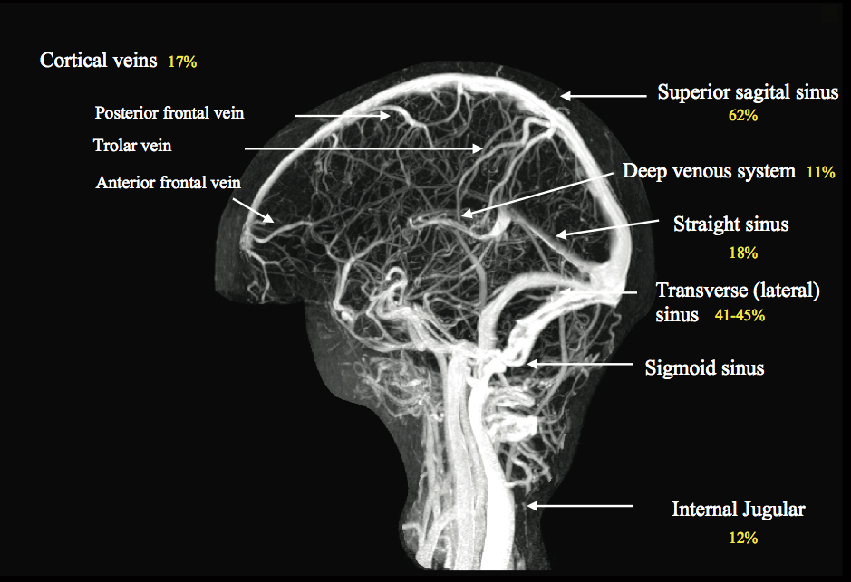 MR ANGIOGRAM OVERVIEW & PROTOCOLS | r@diOlogY dE aruN