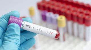 تحذير من الأمم المتحدة: سرعة احتواء فيروس نقص المناعة البشرية آخذة في الانخفاض