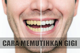 Cara Memutihkan Gigi Dengan Cepat Dalam 1 Hari