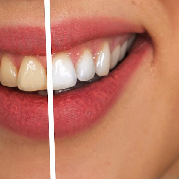 Cara Sederhana Memutihkan Gigi Secara Alami Dan Mudah