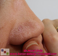 Septum deviasyonu - Burun eti büyümesi - Allerjik rinit - Nazal polip - Akut sinüzit - Konka Hipertrofisi - Kaudal septum deviasyonu