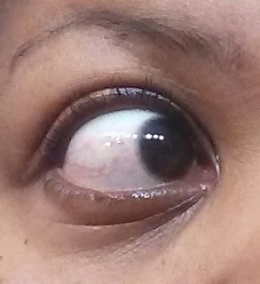 blister in eyeball