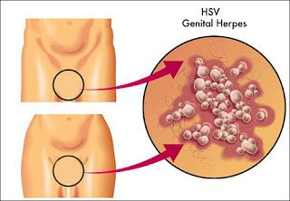 Penyakit Kelamin Herpes