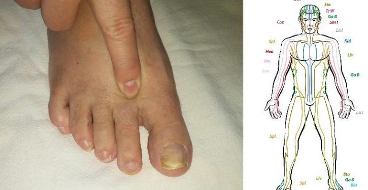 Squeeze This Point Of Your Foot Every Day For 2 Minutes And See What Happens