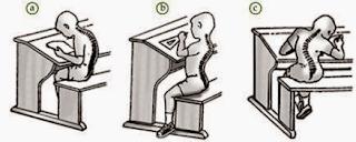 Kelainan Serta Gangguan Pada Sistem Gerak Otot dan Tulang Manusia