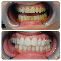 Những Lưu Ý Sau Khi Tẩy Trắng Răng