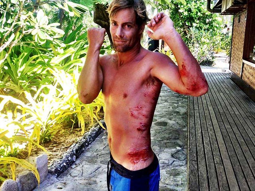 como curar heridas coral
