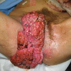 stds cauliflower penis pictures