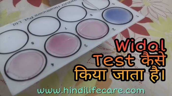 Widal Test कैसे करते है Slide method (Without Microscope)
