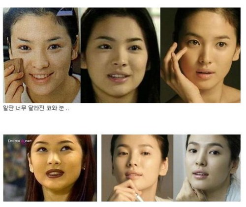 Song Hye Kyo Plastic Surgery Before And After Facelift Nose Job And