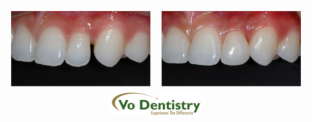 composite, tooth colored, fillings, space close, orthodontic treatment, cosmetic dentistry, Vo Dentistry, Lawrenceville, Norcross, Lilburn, Dacula, buford, duluth, snellville, hamilton mill, grayson, sugar hill, sugar loaf, GA, Georgia, 30019, 30044, 30045