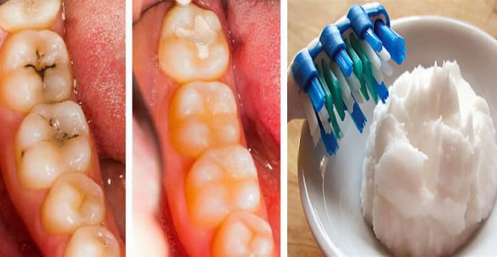 Here's How To End Caries Once And For All!