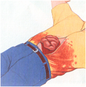 learn nursing: Abdominal injuries, symptoms, signs and ...