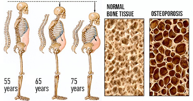 If You Still Drink Soda Water, Stop! It Today It Destroys Your Bones From Inside Out!