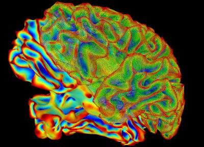 腦神經科學研究軟體有 bug!恐影響該領域 15 年來 4 萬份研究結果?