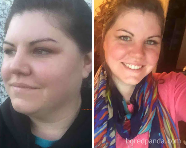10+ Before-And-After Pics Show What Happens When You Stop Drinking - 77 Days Sober