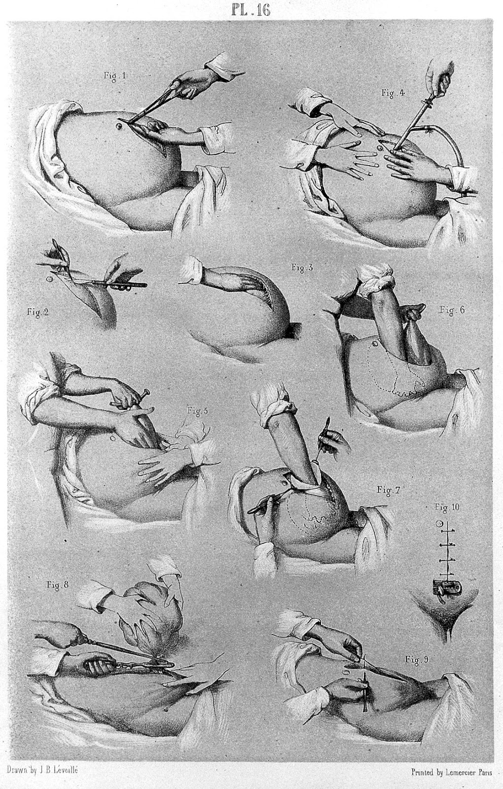 Early Medical Guides in New Spain