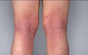 obat gatal eksim menahun di kaki yang paling ampuh