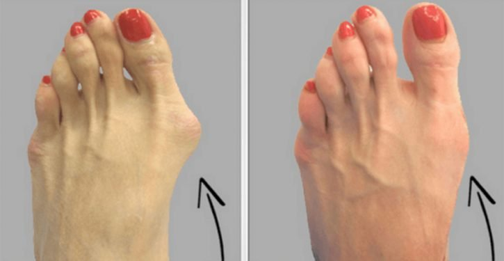 An Old Natural Remedy To Say Goodbye To Your Hallux Valgus