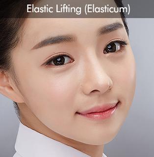 elasticum, lifting elastis Wonjin