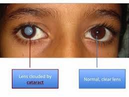 Obat Mata Katarak Yang Alami