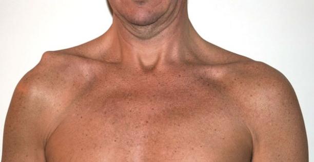 Tratamentul osteocondrozei pe care medicul